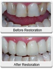 Chandler Cosmetic Dentist - All Ceramic Crowns - before and after