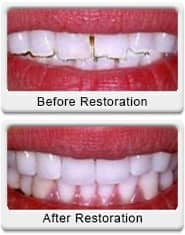 dental bonding veneering before after