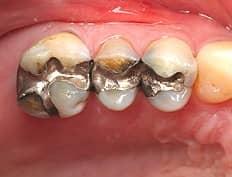 dental composites before restoration