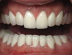 dental crowns veneers after