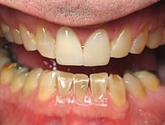 dental crowns veneers before