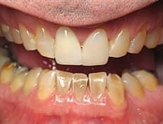 dental crowns veneers before