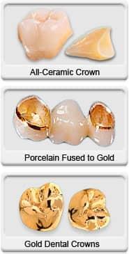 Dental Crowns - All Ceramic, Porcelain Fused to Gold, Gold Dental Crowns