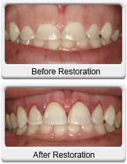 dental gum reduction before after