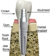 Dental implant tooth illustration
