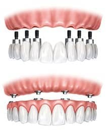 dental implant retained denture with all on 4