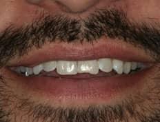 dental veneers before