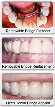 fixed dental bridge before after