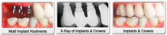 Chandler dentist - Ocotillo Dental Care - multiple Dental Implant