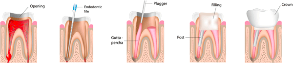 Chandler Dentist - root canal cross section illustration